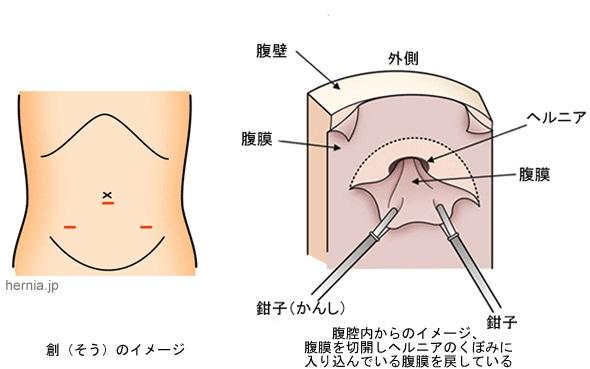 hernia-surgery_img02