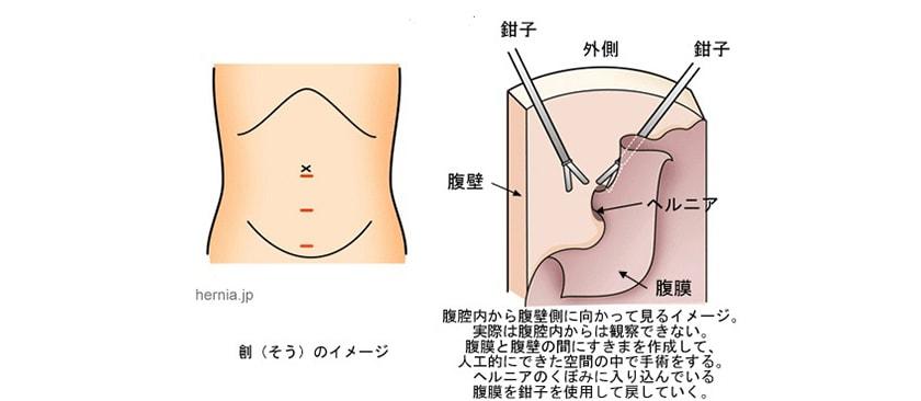 TEP法(腹腔鏡を用いた腹膜前到達法)